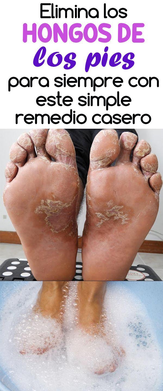 hongos en uñas del pie remedios caseros