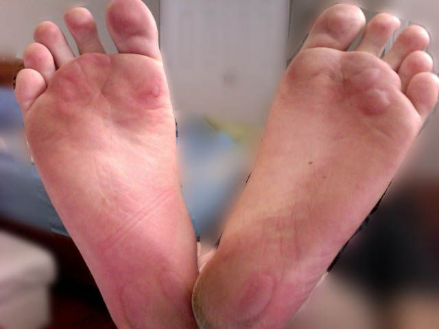Image result for Blisters Camping Injuries