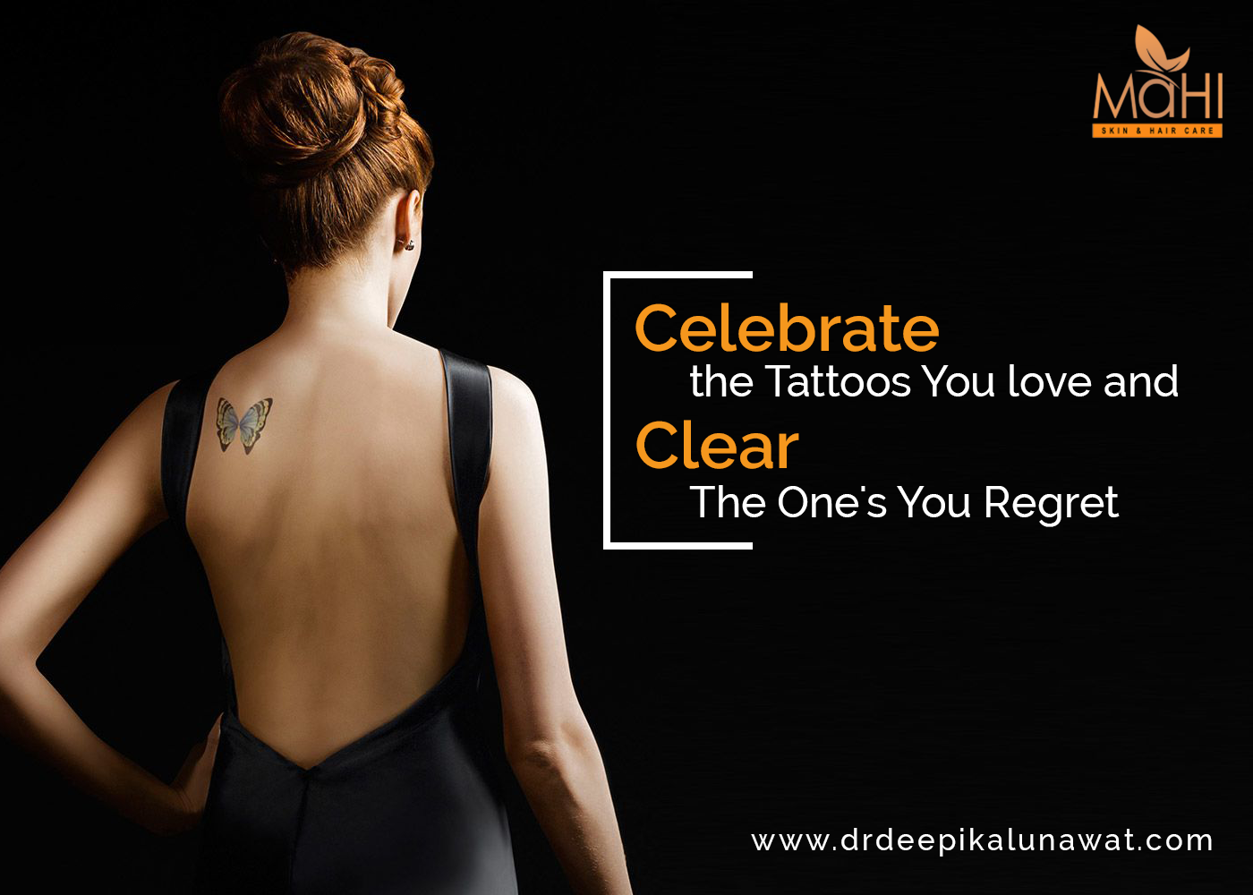 Celebrate The Tattoos You Love And Clear The One S You Regret With Laser Tatto Removal Tattoos Can Be Fun Bu Stretch Mark Treatment Skin Clinic Tattoo Removal