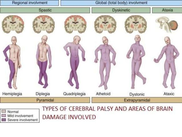 cerebral palsy occupational therapy pdf