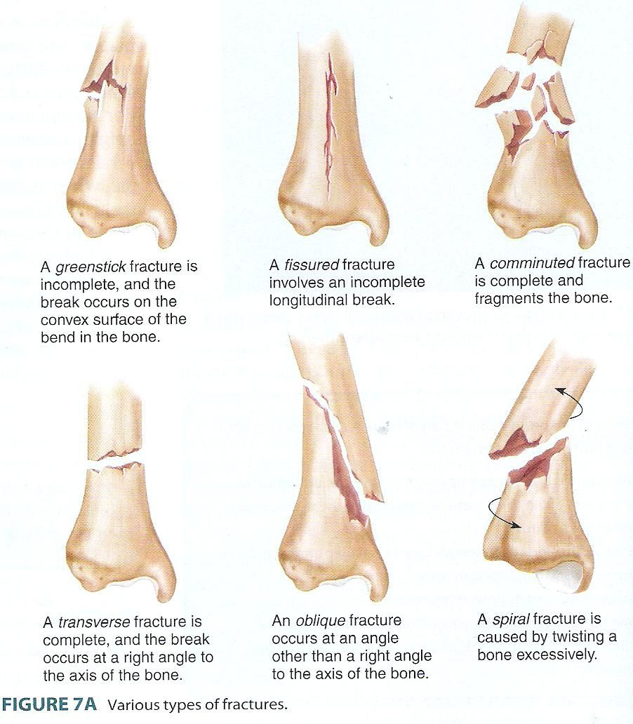 Types Of Bone Fractures Pictures Human Anatomy Organs Fracture