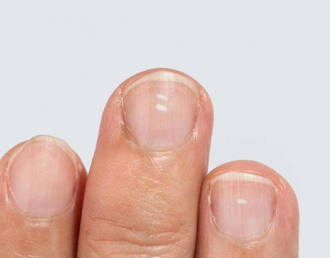 tiny black spot on toenail