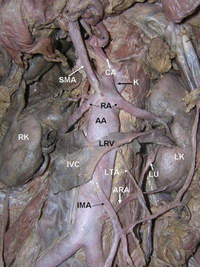 Superior Mesenteric Artery, CA