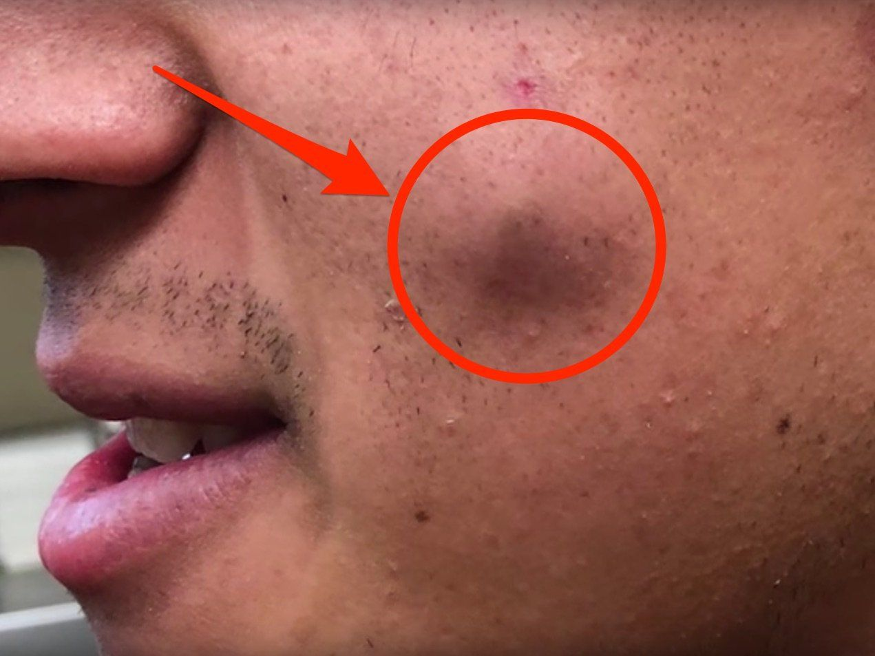 Watch Dr Pimple Popper Empty Out A Massive Cheek Cyst That