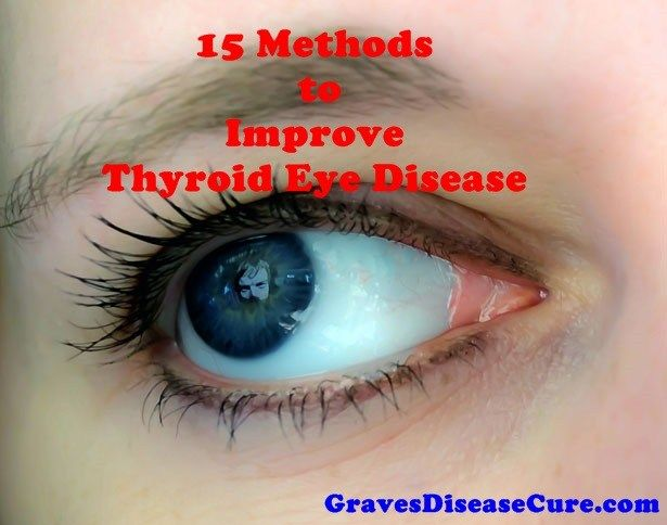 Thyroid Eye Diseaseis an inflammatory condition which affects the orbital contents including the extraocular muscles and orbital fat. It is almost always associated withGraves' disease (GD)…