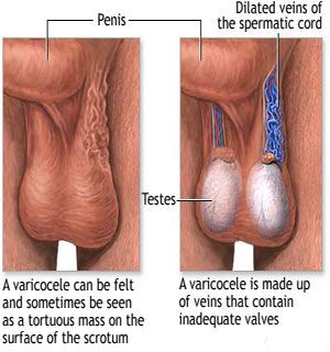 How to tackle varicocele