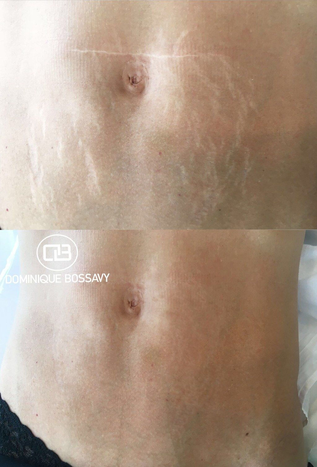 This Tattoo Artist Is Covering Stretch Marks With Skin Colored Ink And The Results Are Amazing Skin Color Tattoos Stretch Mark Camouflage Stretch Mark Tattoo