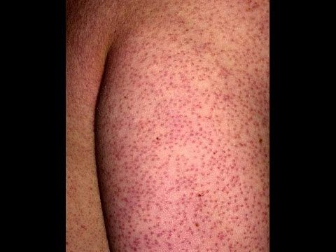 How to Prevent Keratosis Pilaris from Spreading? | How to Treat