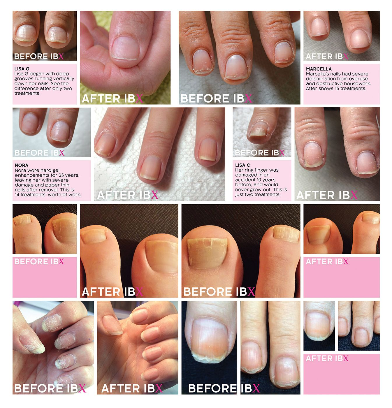 Pin by Nadya Zm on ibx nail cure | Pinterest | Bio sculpture and ...