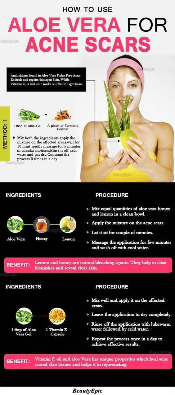 Aloe Vera Yogurt Tattoo Removal: How To Use Aloe Vera For Acne Scars #acneremediesaloevera