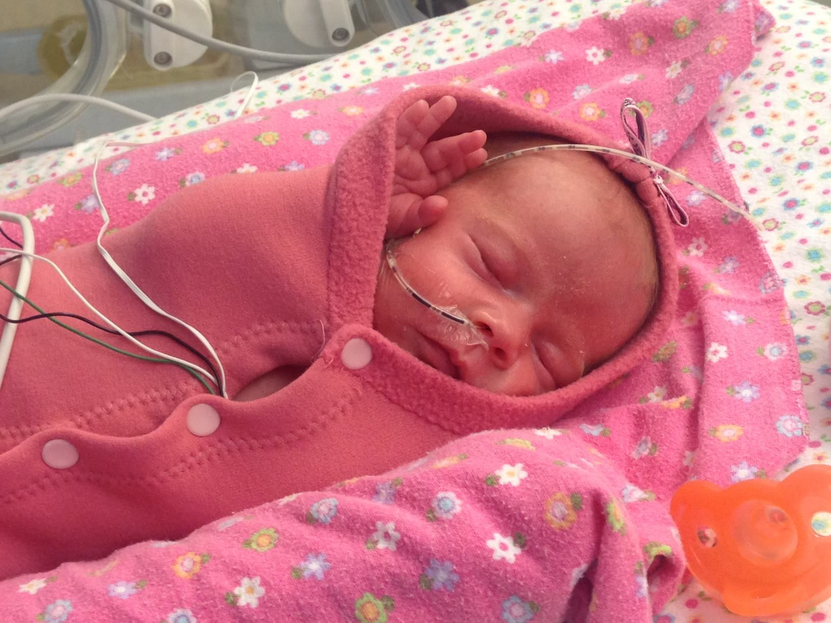 Special enclosed crib for premature babies - Premature Babies Helped With Pea Pod