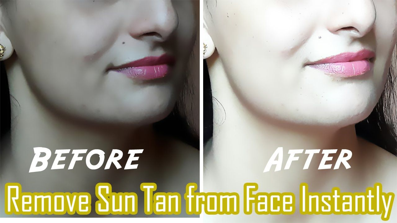 In 15 minutes How to Remove Sun Tan from Face & Neck with