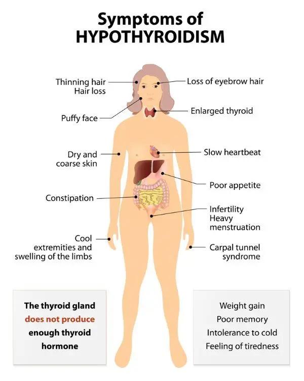 Hipertireoidismo VS Hipotireoidismo: sintomas e do