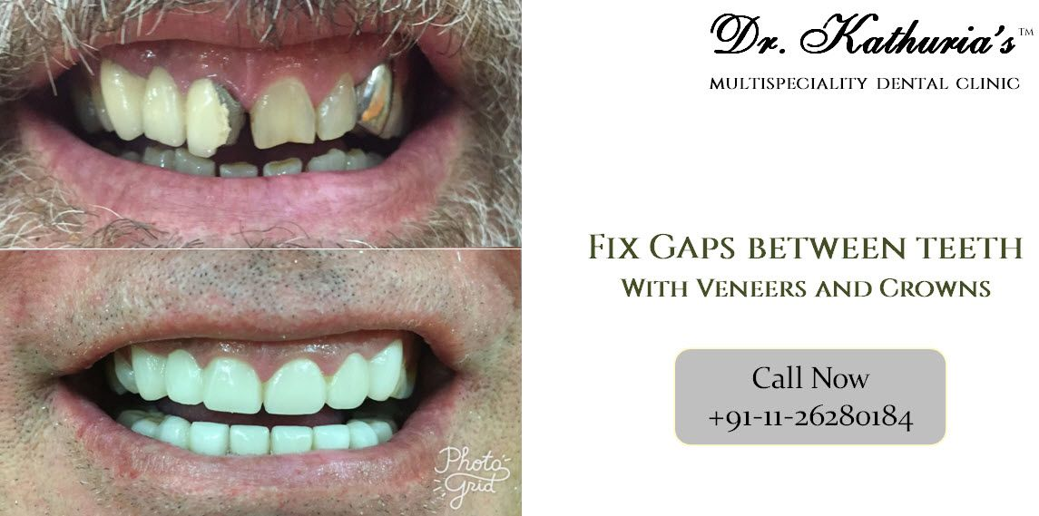 Fix Gaps Between Teeth with Veneers and Crowns at Dr