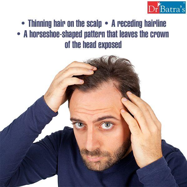 Pin By Dr Batra S On Hair Loss Solutions Hair Hair