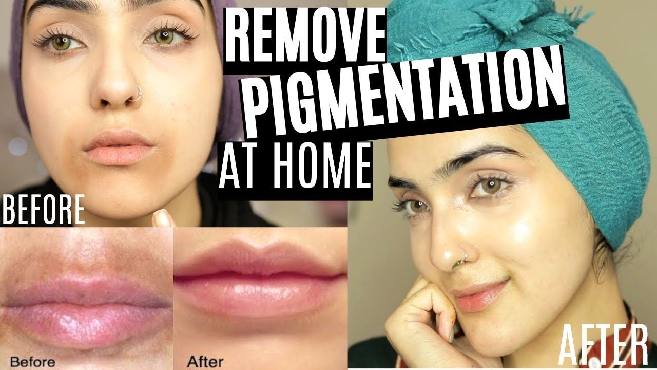 How to remove pigmentation dark spots around mouth fast