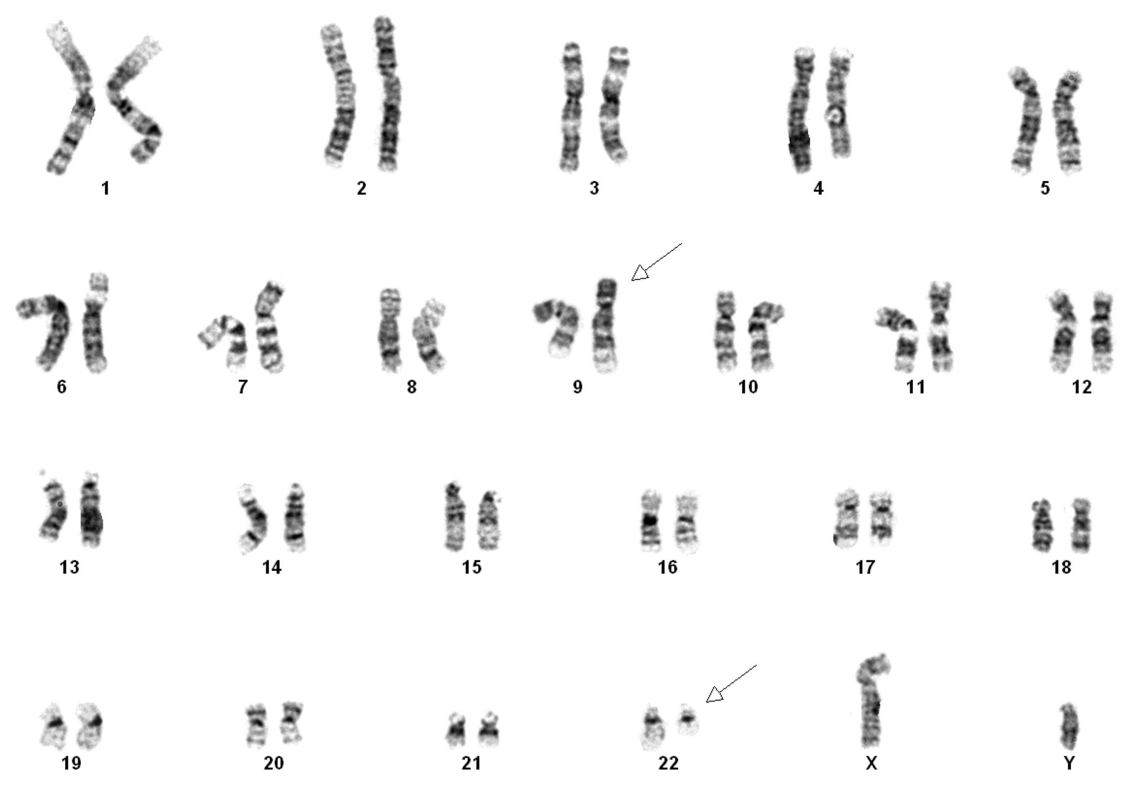 Karyotype Me On A Map Cri Du Chat Klinefelter Syndrome