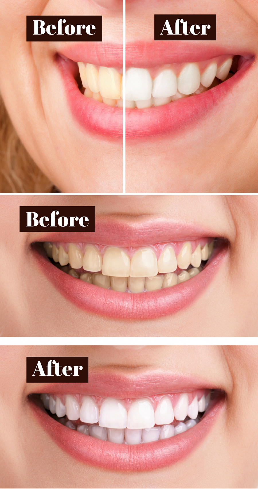 Natural Teeth Whitening Recipe How To Whiten Teeth With Homemade