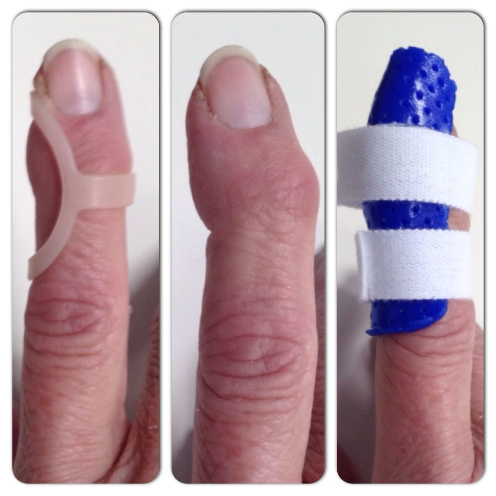 Splints For Treating Radial Deviation At The DIP Joint Due