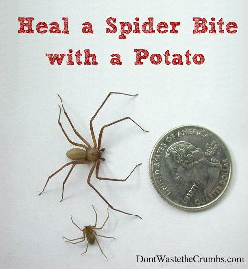 How to Heal a Spider Bite with a Potato