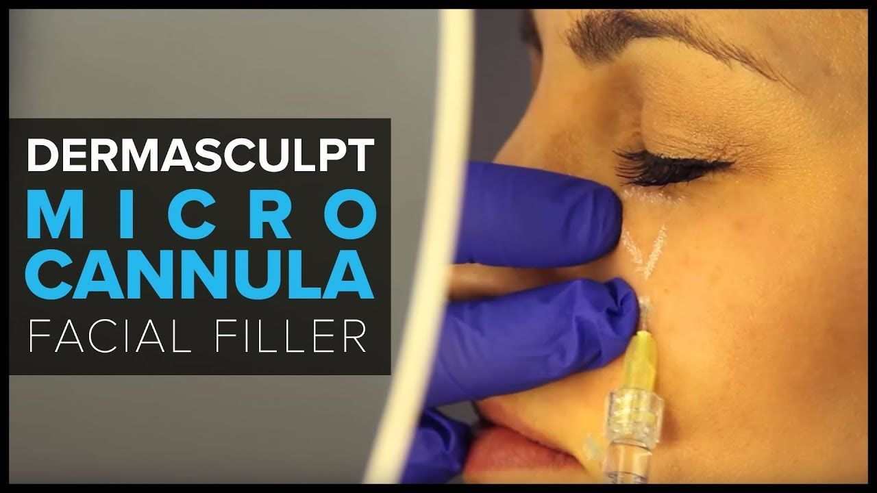 DermaSculpt MicroCannula for Facial Filler Injections#MicroCannula  #DermaSculpt #Injections #Facial #FillerDermaSculp… | Facial fillers,  Injectables fillers, Facial
