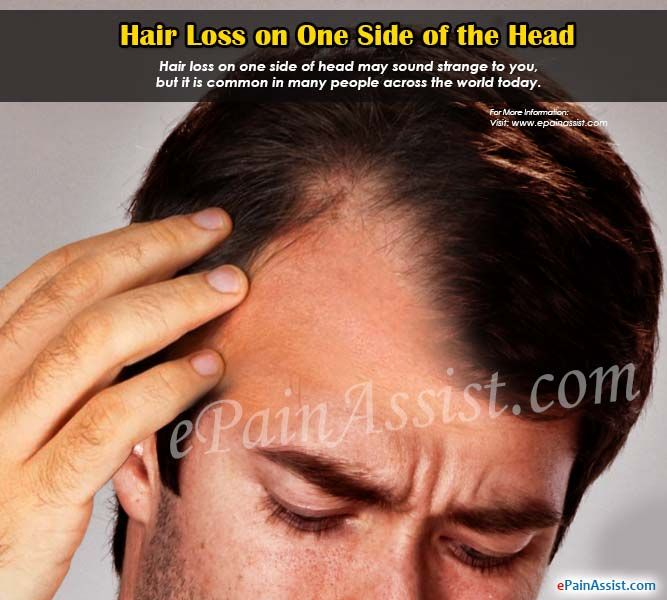 Causes Hair Loss One Side Head Http Www Hairlossmenwomen Com Causes Hair Loss One Side Head Hair Loss Men Help Hair Loss Hair Loss
