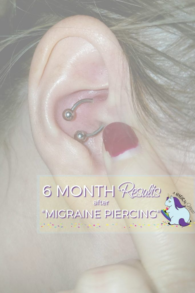 how to tell if daith piercing is infected