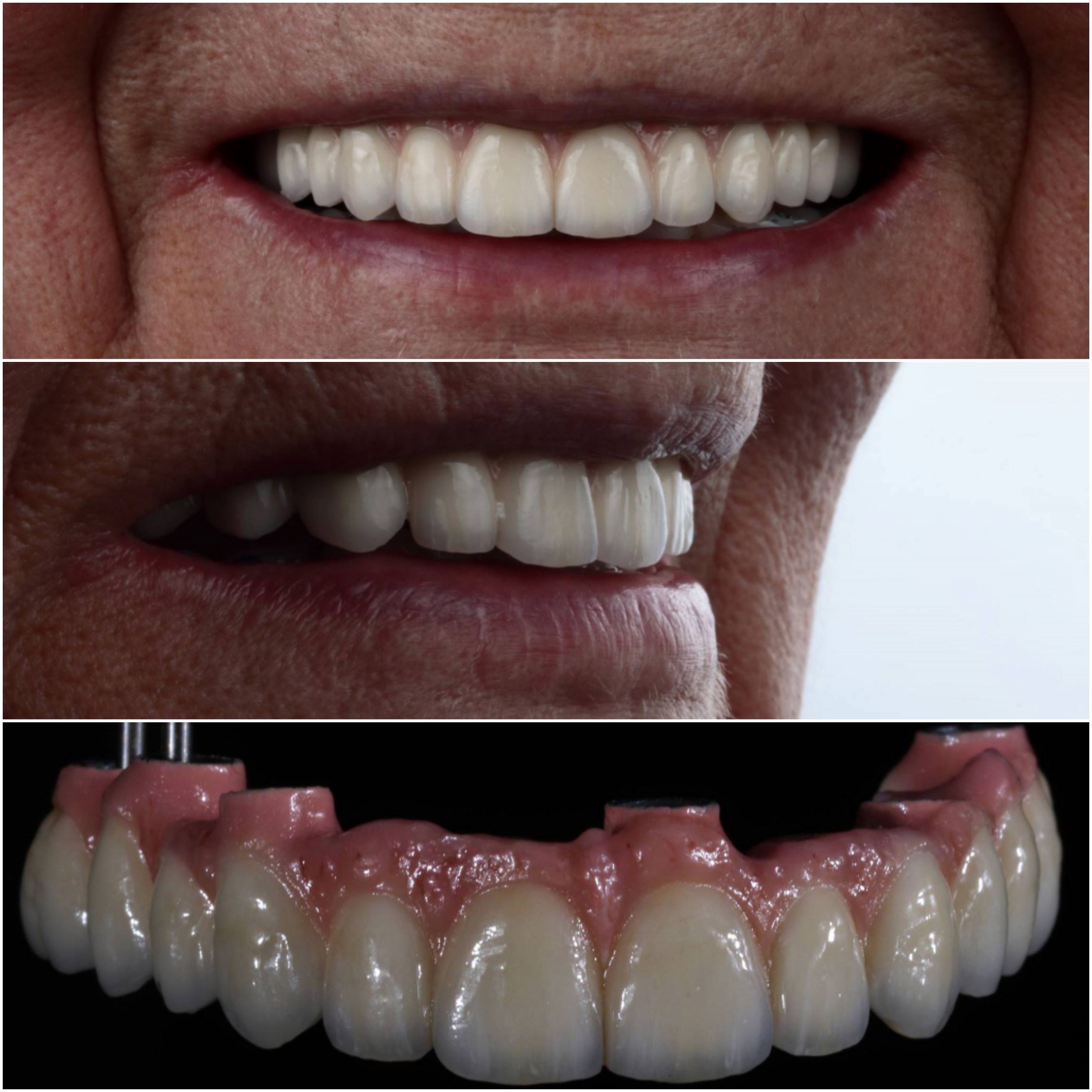 Unaccountable Dental Implants Cost Dr Who Toothpaste Dentalimplantsbeforeandafterwebsite Dental Ceramics Dental Implants Cost Teeth Implants