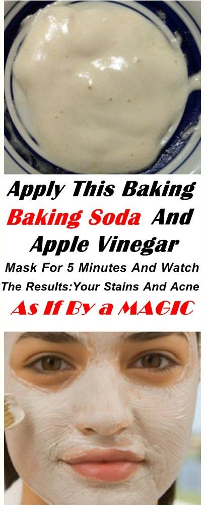 APPLY THIS BAKING SODA AND APPLE VINEGAR MASK FOR 5 MINUTES AND WATCH THE RESULTS YOUR STAIN APPLY THIS BAKING SODA AND APPLE VINEGAR MASK FOR 5 MINUTES AND WATCH THE RES...