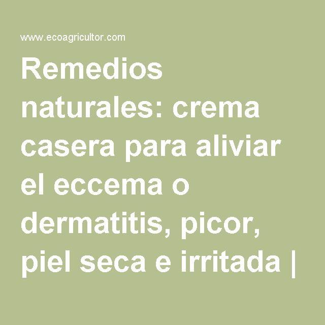 Crema Casera Para Aliviar El Eccema O Dermatitis Picor Piel Seca E Irritada Natural Alternative Psoriasis Math