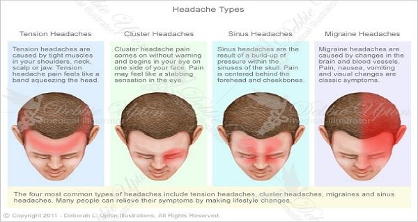 headache-types-610x430 - Chiari malformation   Pinterest - Zoeken