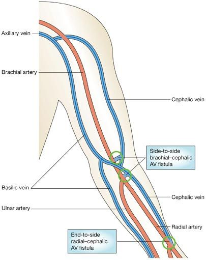 Diagram Of The Upper Extremity Fistula - Auto Electrical Wiring ...