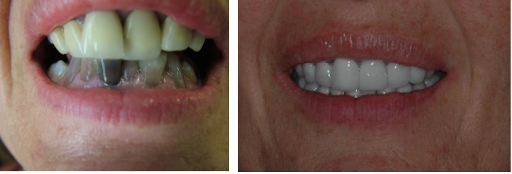 """before and after grovecitydentistry """"Smile is your best"""