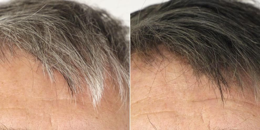 Hairprint Is A Scientific Breakthrough That Restores Gray Hair To