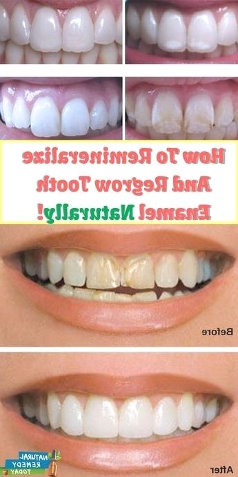 does remineralizing toothpaste work how exactly to heal cavities naturally hoax