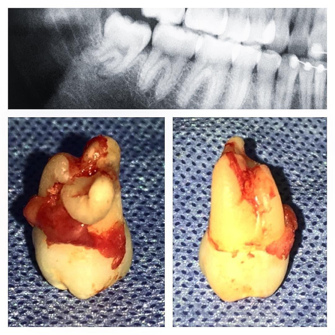 Canal mandibular marcado na anatomia radicular do 3º molar. by ...