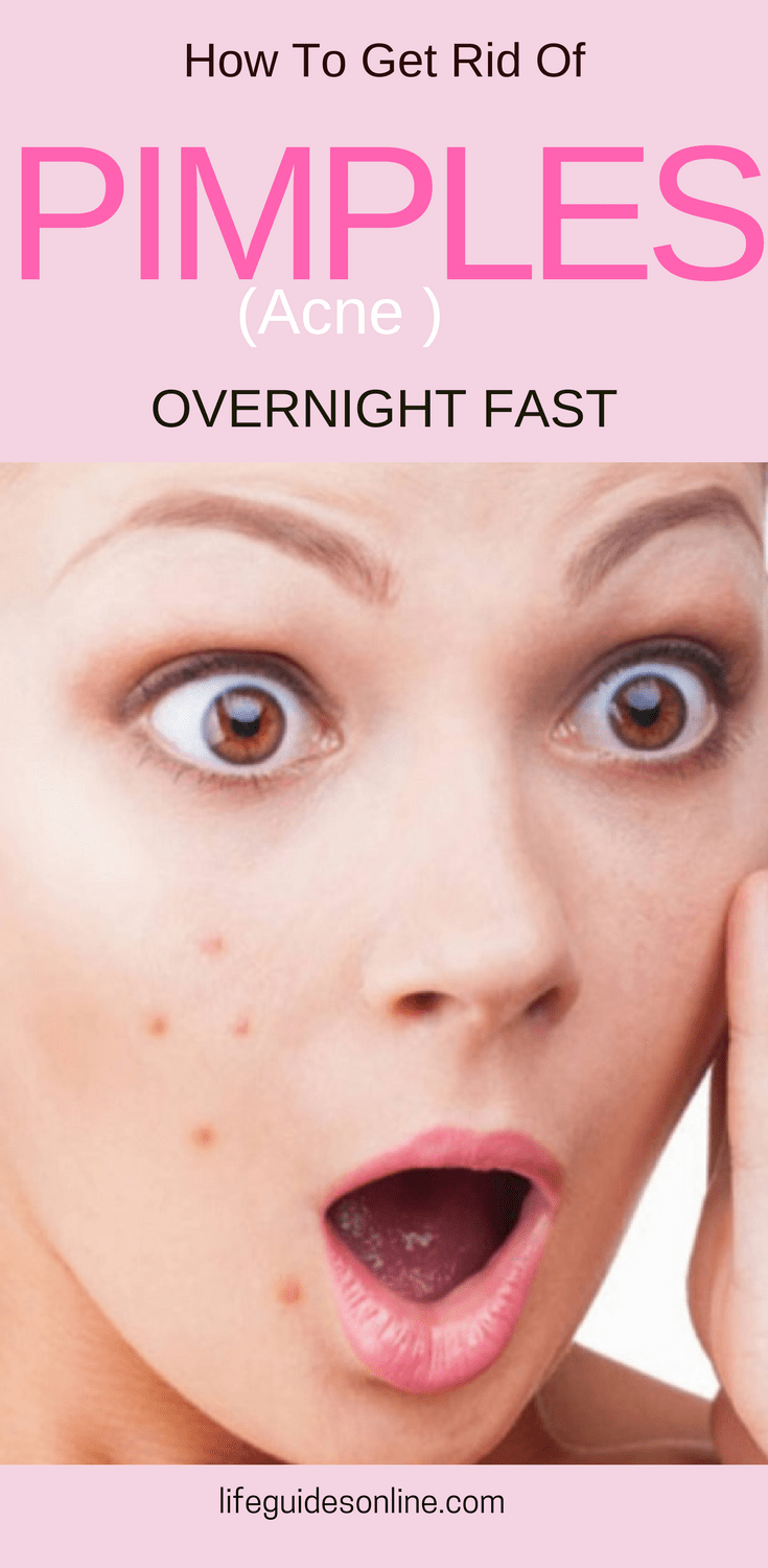 remedies to get rid of acne overnight