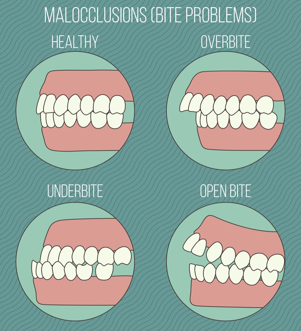 Orthodontic Disorders New Paltz Ny Orthodontics Orthodontics Marketing Dental Hygiene School