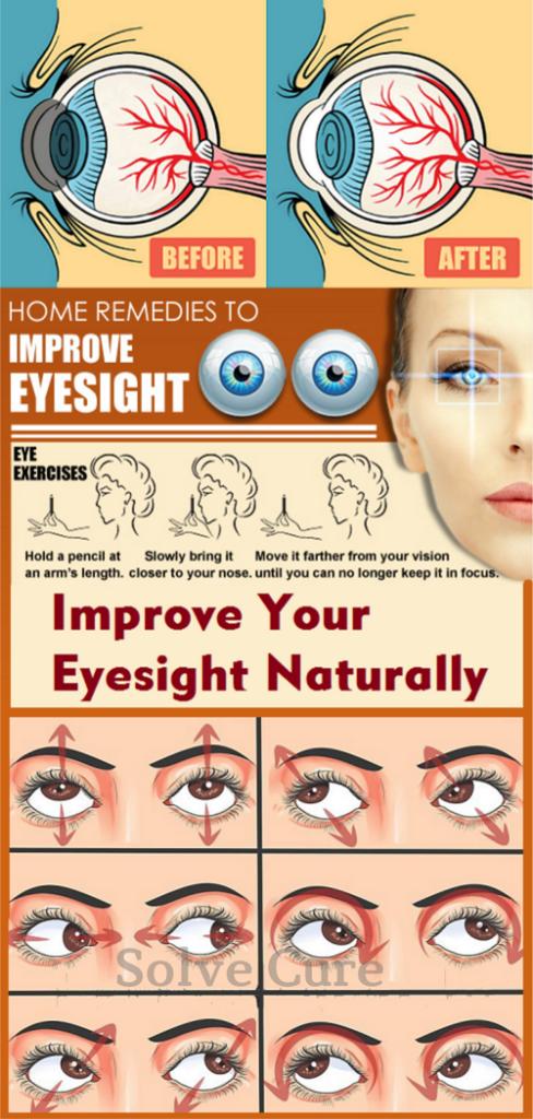 Improve Your Eyesight Naturally Solve Cure Eye Exercises Eye Sight Improvement Eye Health