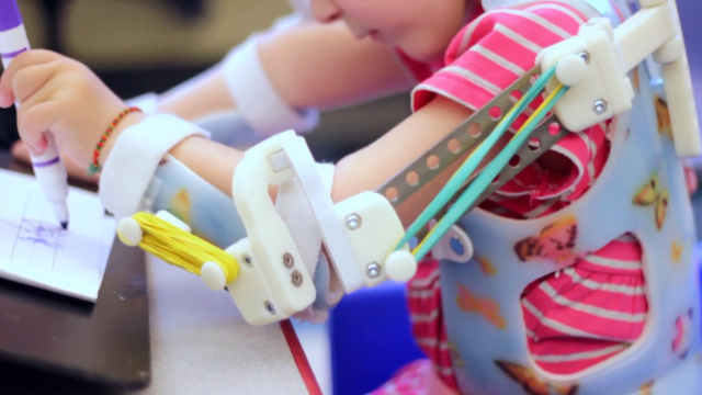 Une prothèse duplicable aisément grâce à une imprimante 3D :