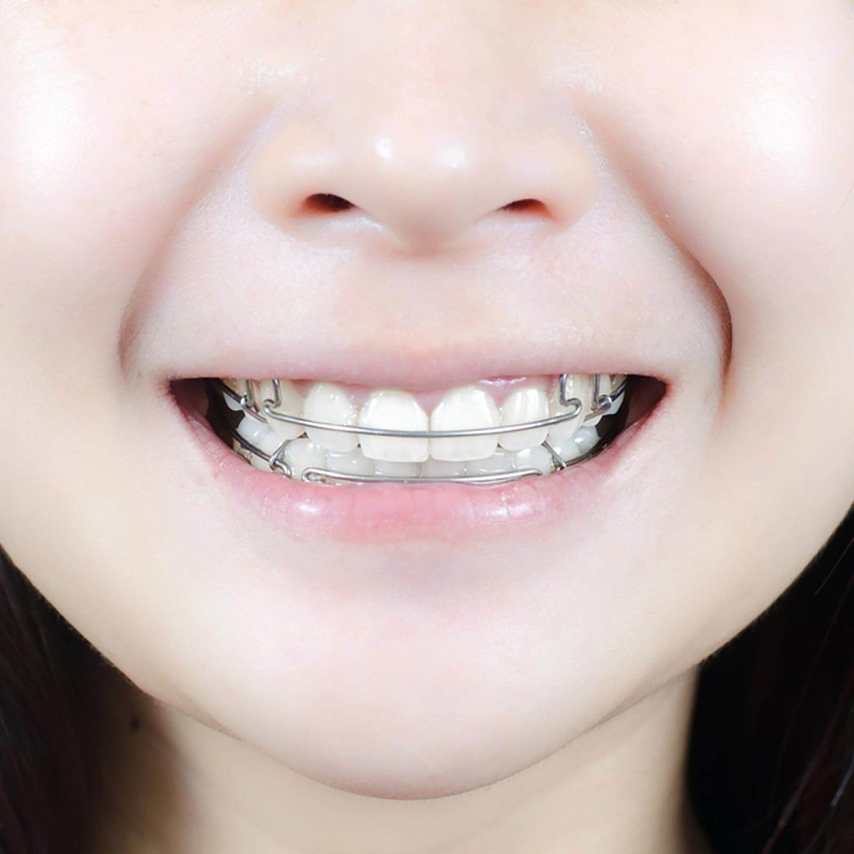11 Things Your Orthodontist Won't Tell You | Dental retainer, Retainer  teeth, Retainers colors