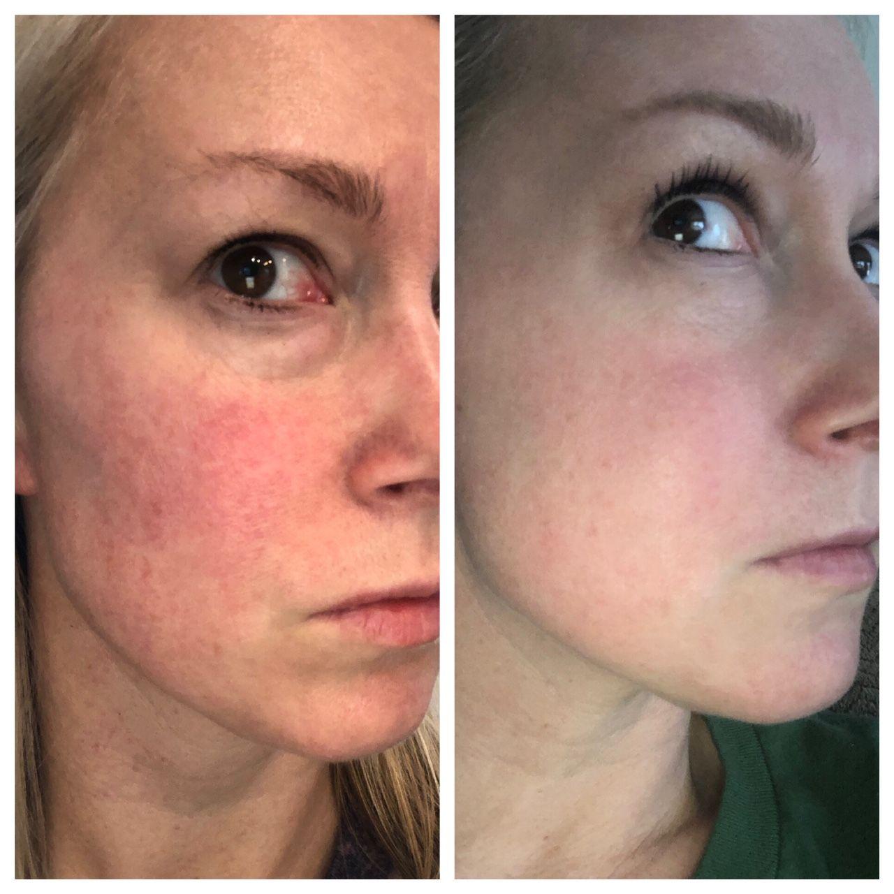 Skincare Skinresults Medicalspa Medspa Antiaging Finelines Hyperpigmentation Ipl Freckles Rosacea Spaatsprin Ipl Laser Hyperpigmentation Medical Spa