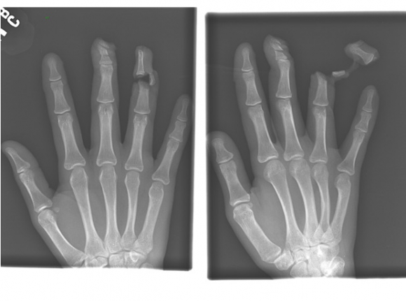 Funny Xray Tech Memes : Best xray images radiology rad tech and info