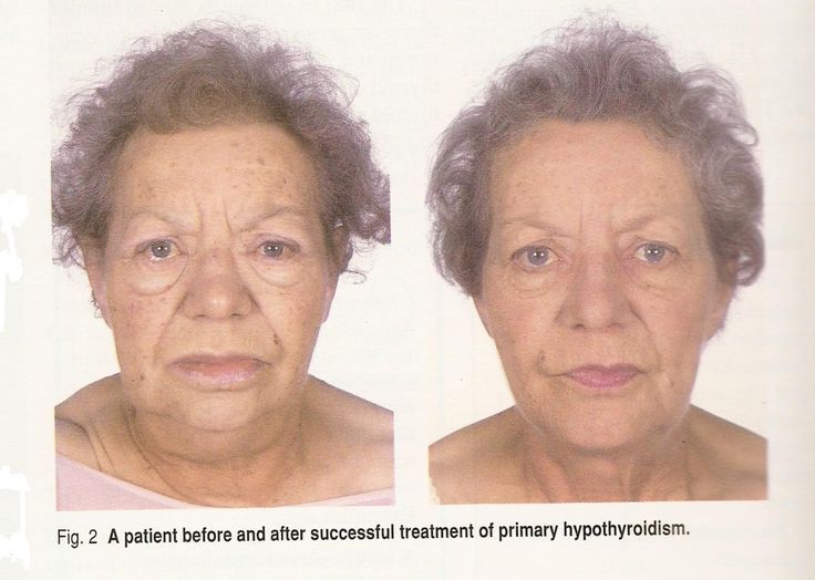 Hypothyroid And Facial Edema Photos