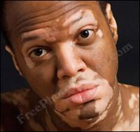 Did You Know That Leucism Is A Reduction In All Types Of Skin Pigment Not Just Melanin Tratamiento Del Vitiligo Vitiligo Enfermedad De Addison
