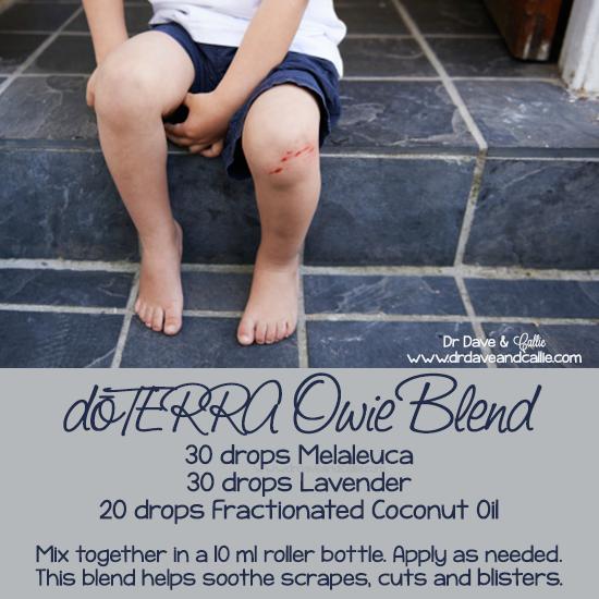 #dōTERRA #Owie Blend: 30 drops #Melaleuca, 30 drops #Lavender, 20 drops… www.mydoterra.com/dianesulzer
