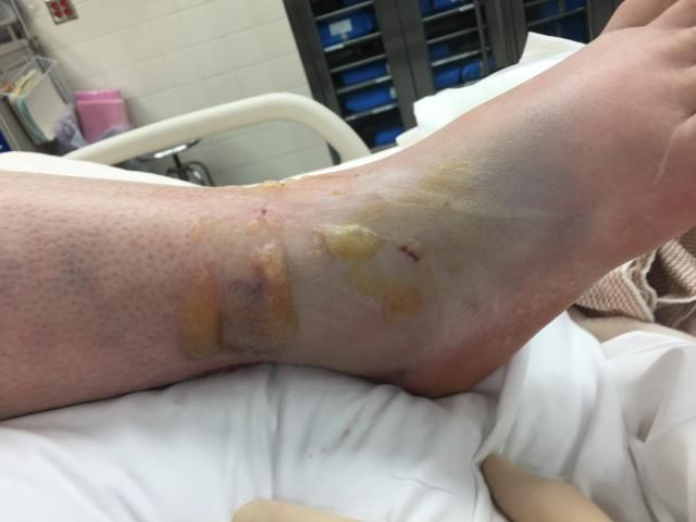 Skin Blisters After Severe Fractures Are Often Expected