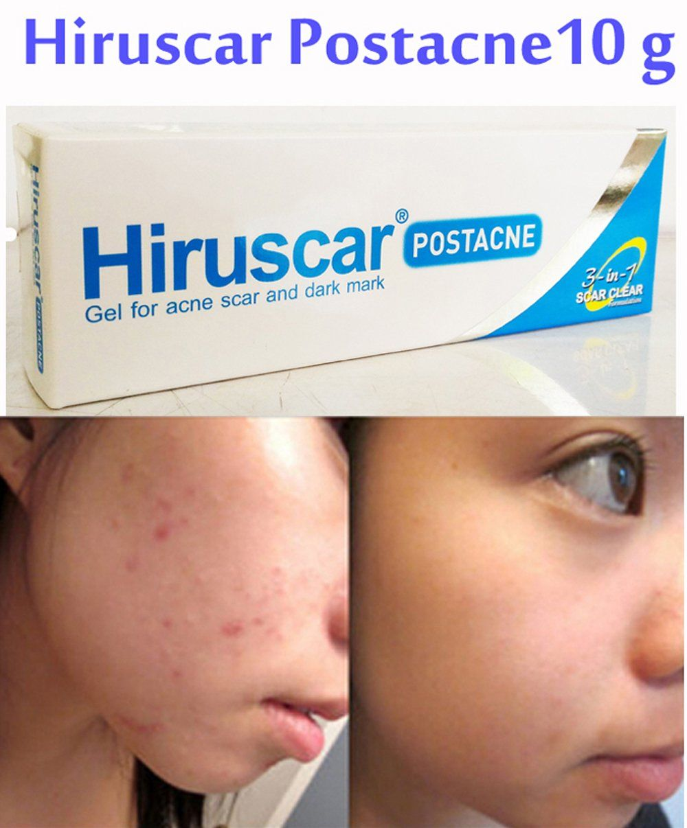Acne Treatment Hiruscar Post Gel 10 G Dark Mark Relief Scar Clear 3 In 1 Smooth Skin Learn More By Visiting The Photo Link