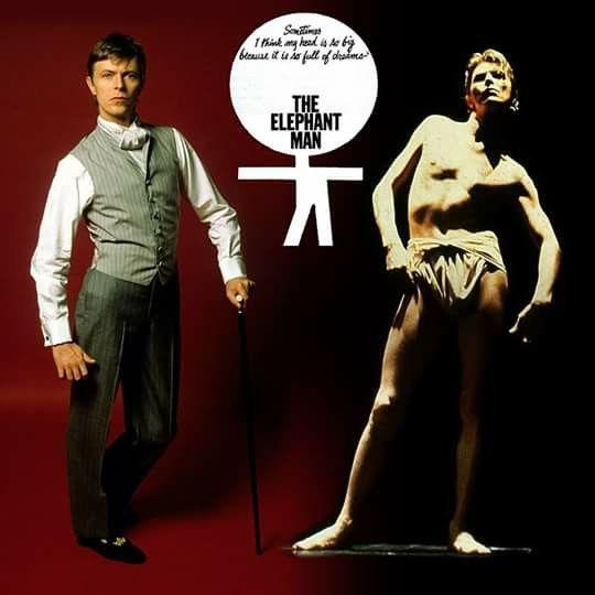 David Bowie Elephant Man | David bowie starman, David bowie, Bowie