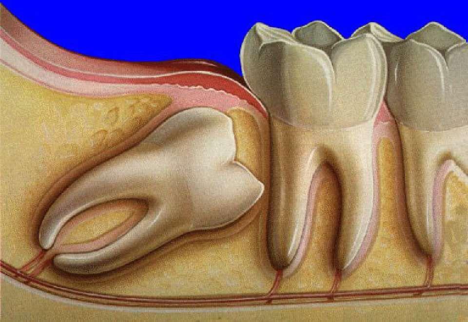 اعراض ظهور ضرس العقل ونصائح عند خلعه موسوعة Wisdom Teeth Tooth Extraction Aftercare Teeth Implants